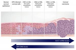 infezione da HPV progressione CIN